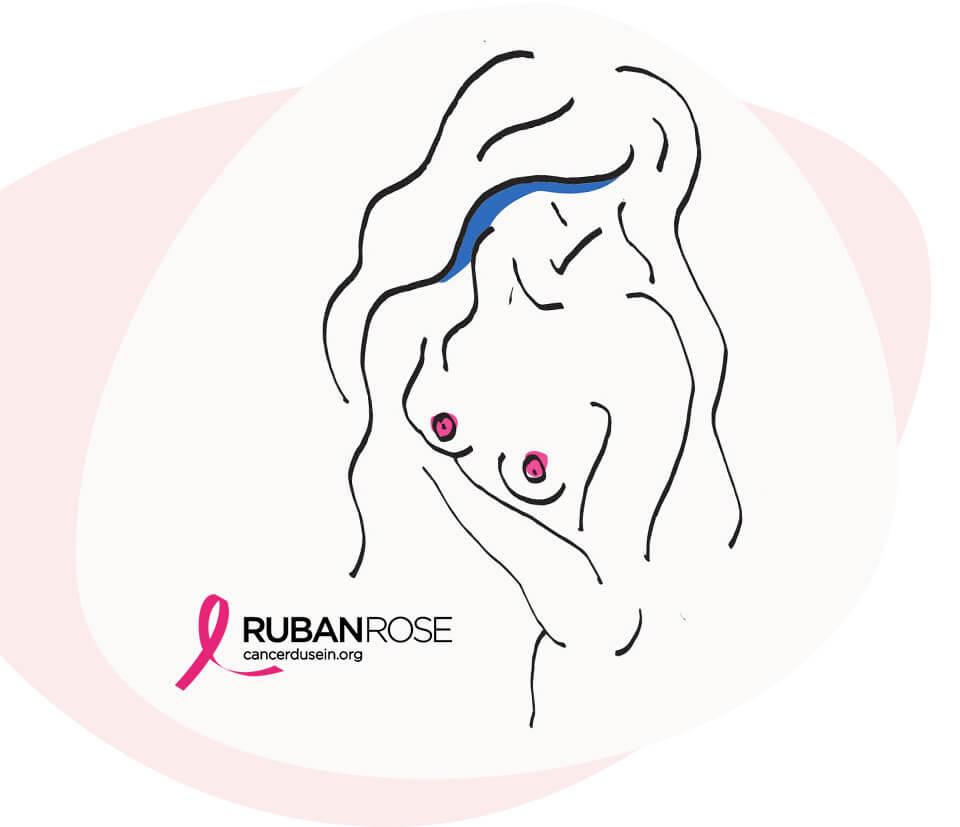 L'association Ruban Rose